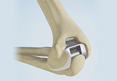Total Elbow Replacement